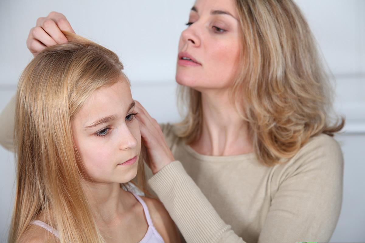 تفسير رؤية  القمل في الشعر لابن سيرين في كل الحالات