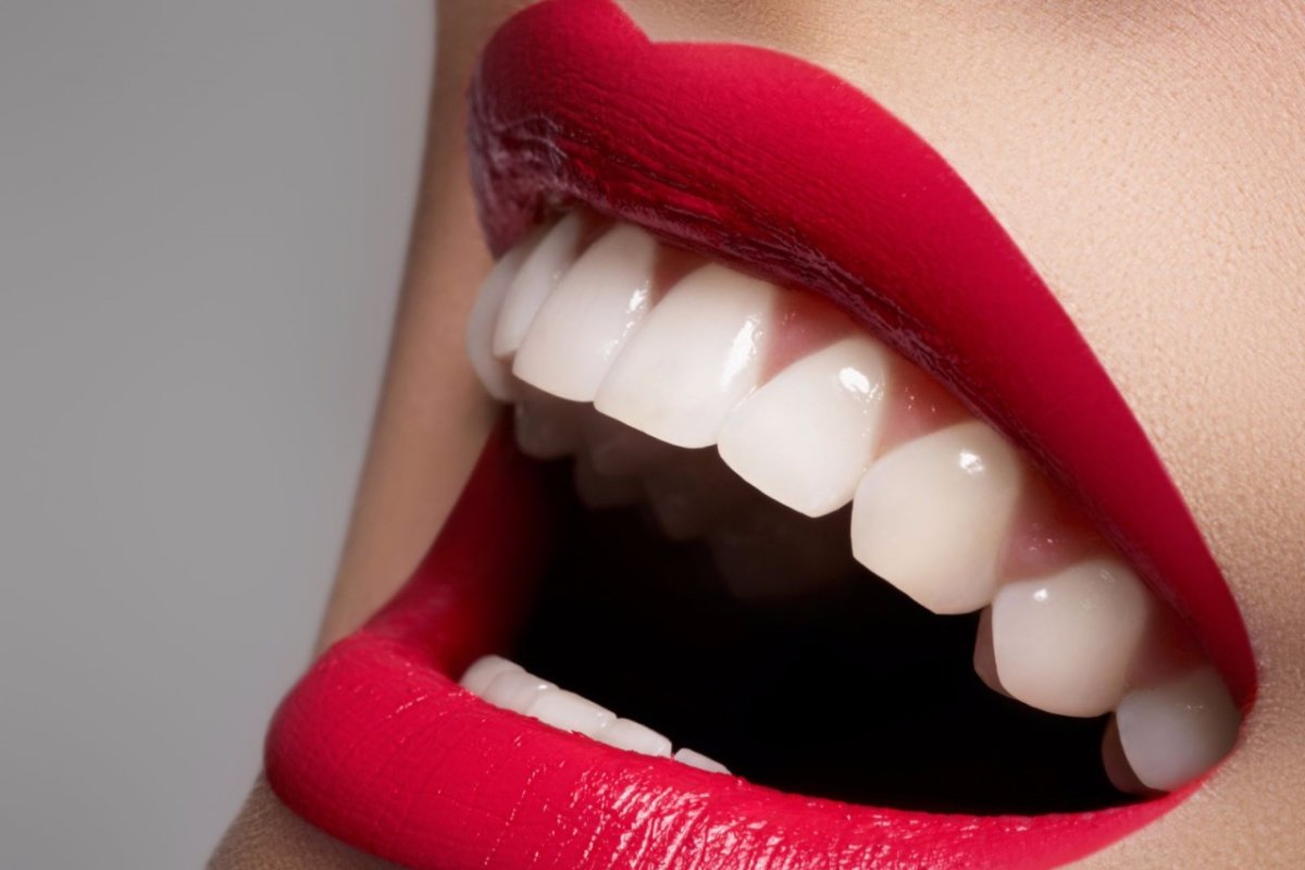 سعر عدسات الأسنان في السعودية 1443