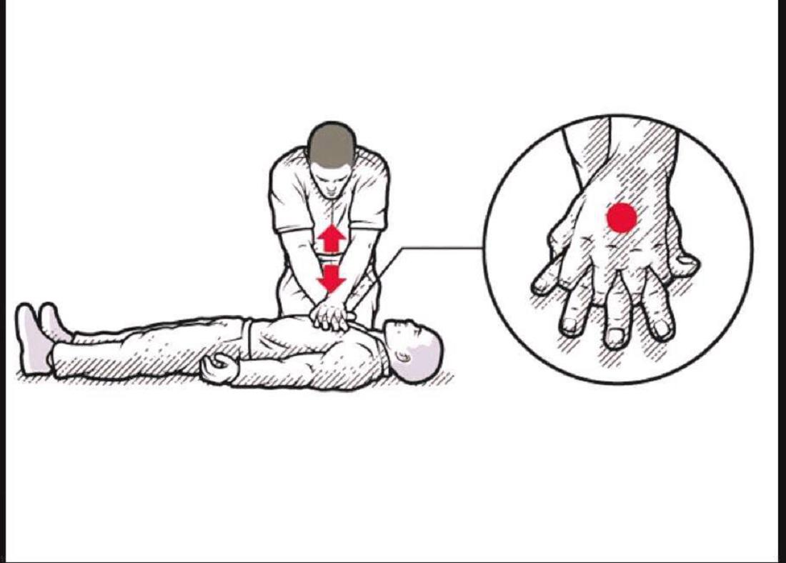 ما هو الإنعاش القَلبي الرئوي CPR
