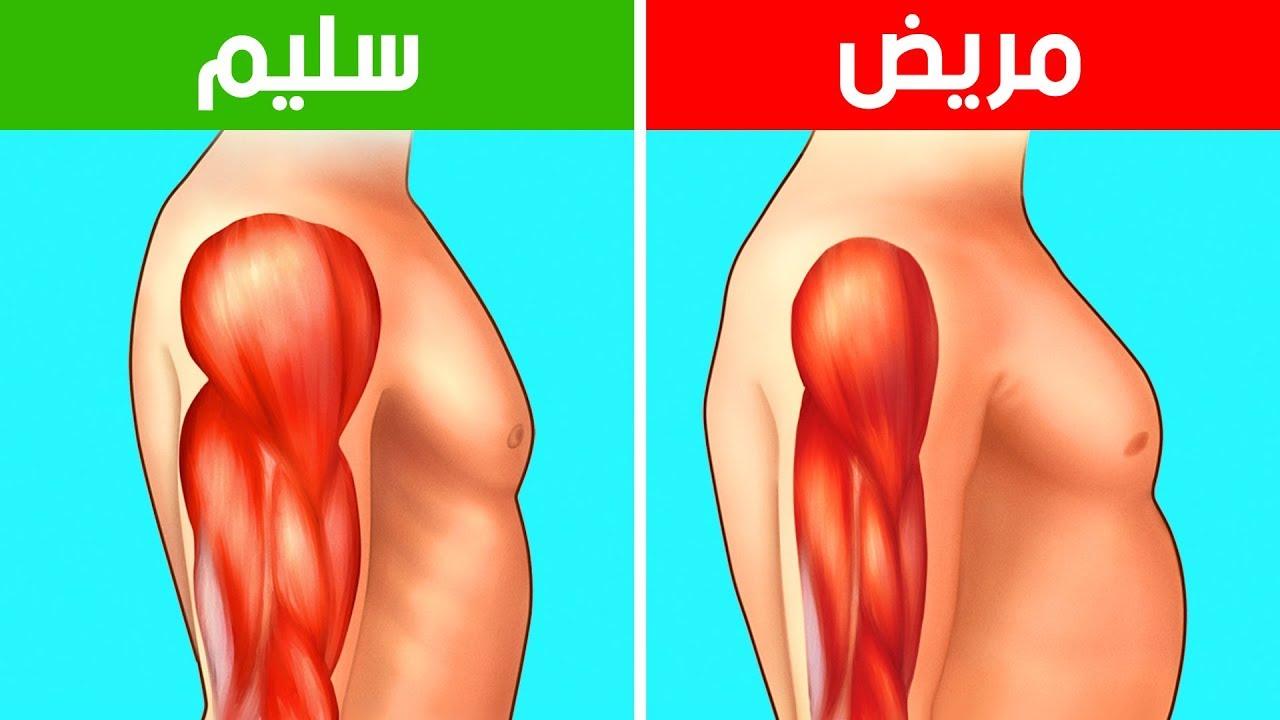 ما هو مرض ضمور العضلات وتشخيصه وعلاجه