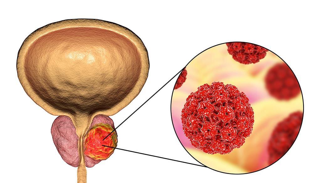 هل يشفى مريض سرطان البروستاتا
